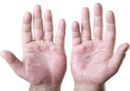 Как вылечить руки от трещин и сухости в домашних условиях с