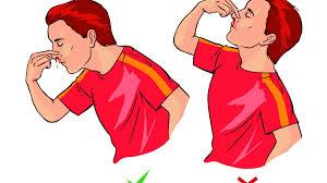35 естественных способов как лечить носовое кровотечение в доме