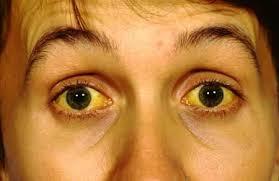 12 домашних средств для устранения желтизну глаз от гепатита
