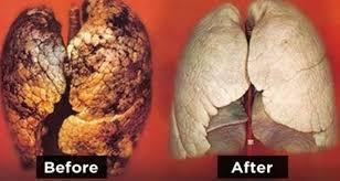 12 способов очищения лёгких после продолжительного курения