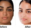 Как осветлить кожу натурально за неделю? (рецепты средств)