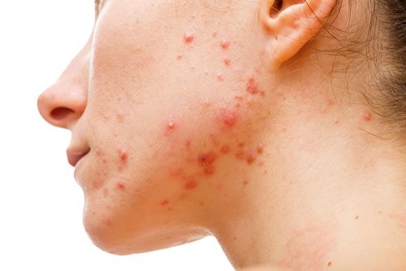 7 способов натурального лечения акне на шее у женщин