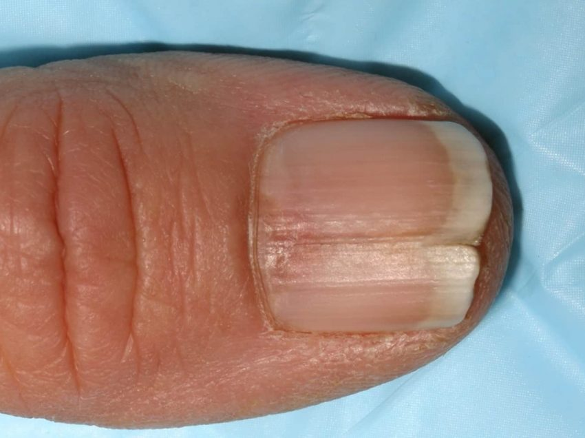 6 причин сломанных и расслоенных ногтей- Симптомы и Лечение