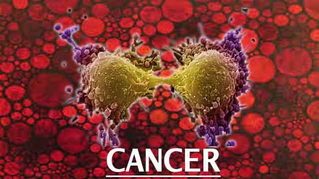 7 факторов образа жизни, ведущих к раку (нужно избегать!)