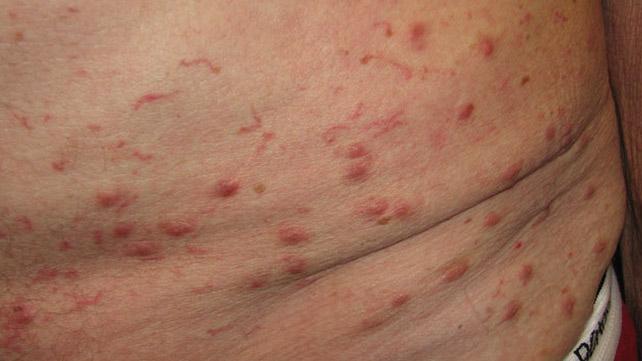 5 опасных симптомов появления чесотки