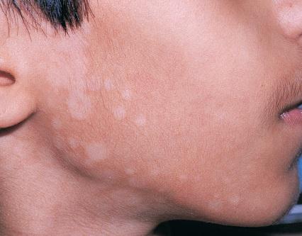20 быстрых способов вылечить отрубевидный лишай на вашем лице