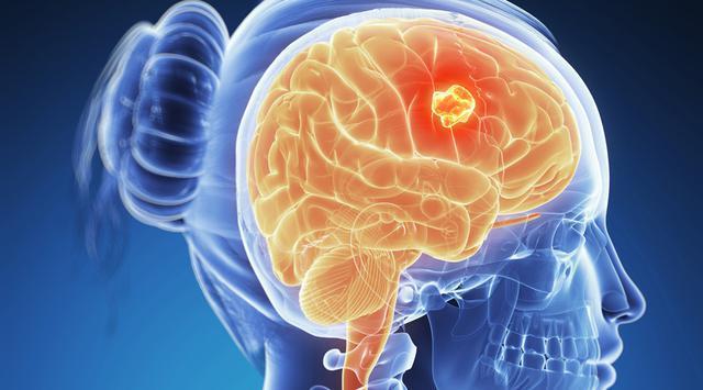 Доброкачественные опухоли головного мозга (симптомы и лечение)
