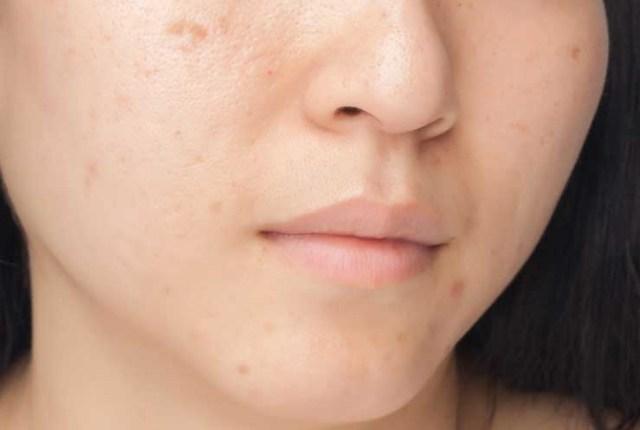 8 быстрых способов устранения шрамов ветрянки на лице