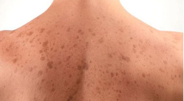 4 эффективных способа избавления от темных пятен на спине