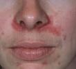 9 причин шелушащейся и сухой кожи вокруг носа (включая лечение)
