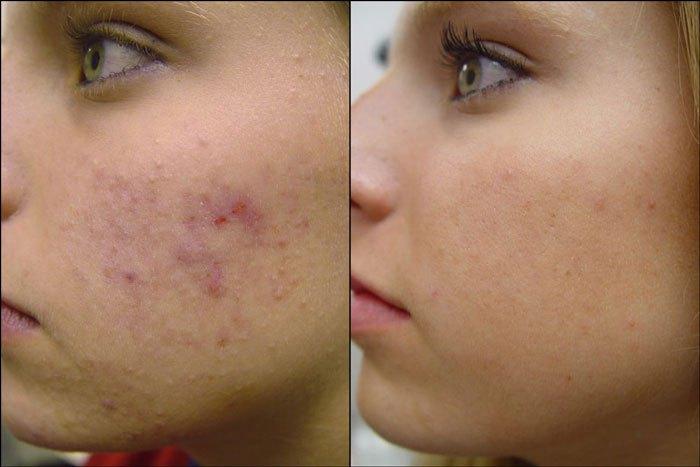 6 естественных способов избавиться от гиперпигментации на лице