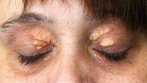 Холестерин в глазах
