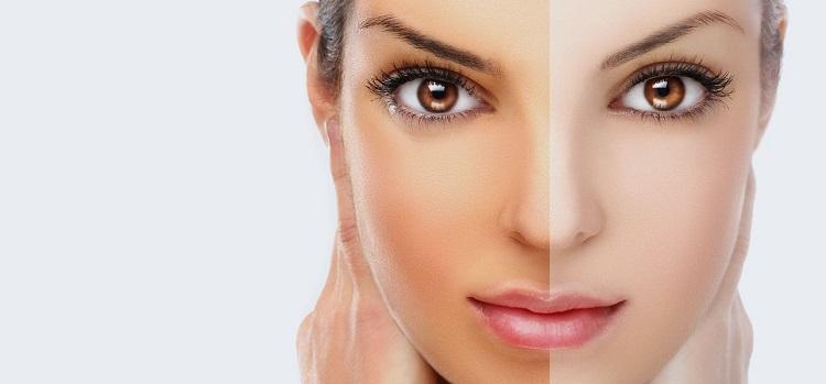 9 быстрых и естественных образ для отбеливания кожи за один день