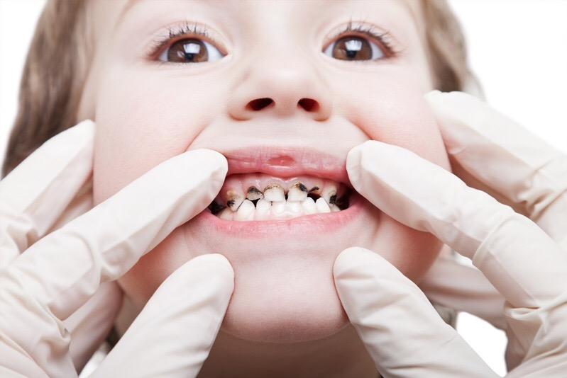 Гниение зубов у малышей и способы это преодолеть