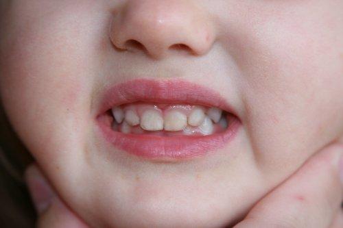 Пигментация зубов у малышей – причины, лечение, профилактика.