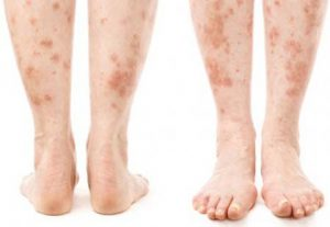 skin problem with diabetes