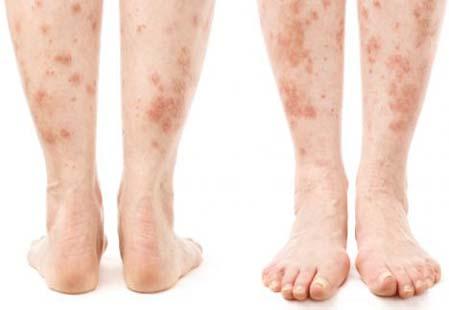 13 ранних признаков диабета проявленных на коже