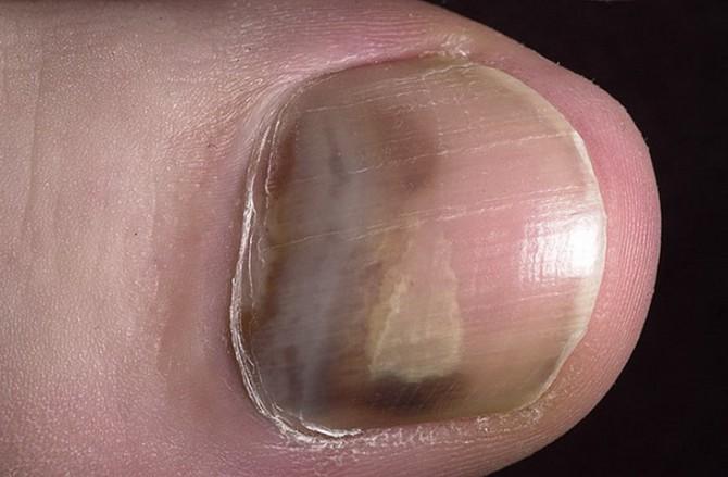 5 симптомов рака кожи на ногтях (надо обязательно знать)