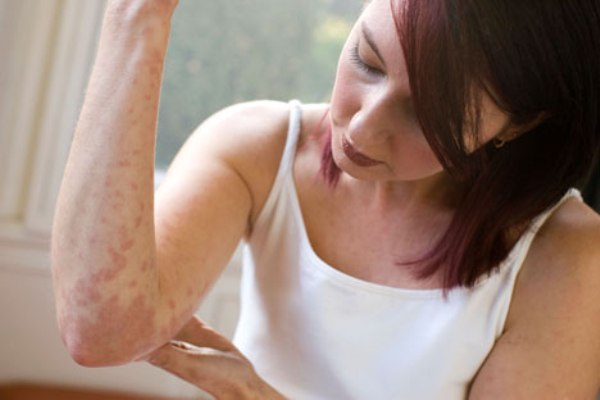 Изменения на коже при заболеваниях почек