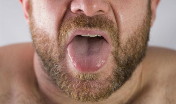 11 фактов о раке языка (включая рекомендации лечения)