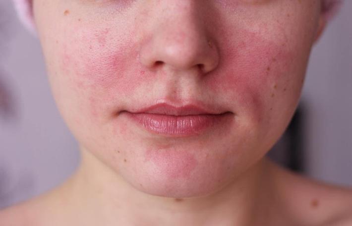 Правильное лечение сухой кожи на лице – Это работает!