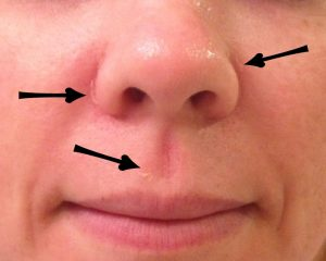 dry skin on nose