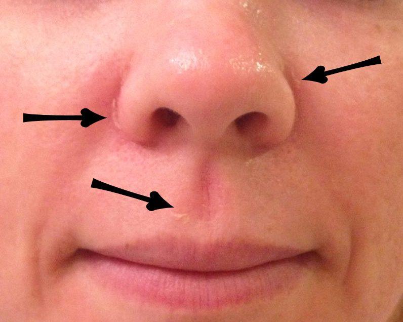 Как избавиться от сухой кожи вокруг носа (рекомендации)