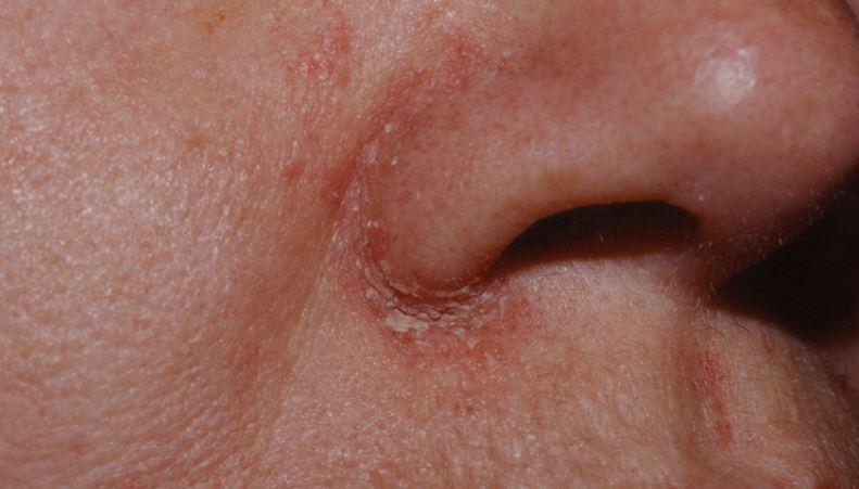 Причины шелушащейся кожи вокруг носа (рекомендации)