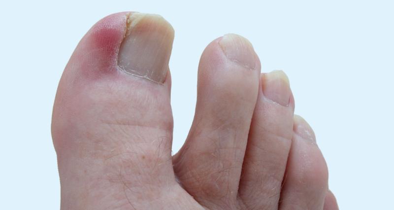 Естественные способы лечения вросшего ногтя дома:  причины, симптомы.