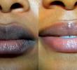 Как осветлить темные губы с рождения легко и быстро