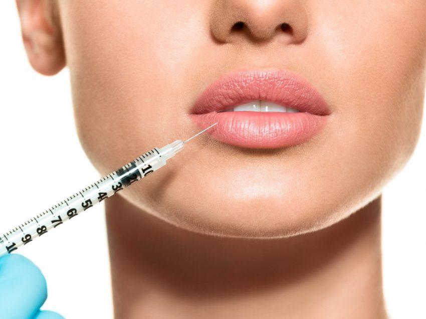 14 негативных последствий от уколов в области губ