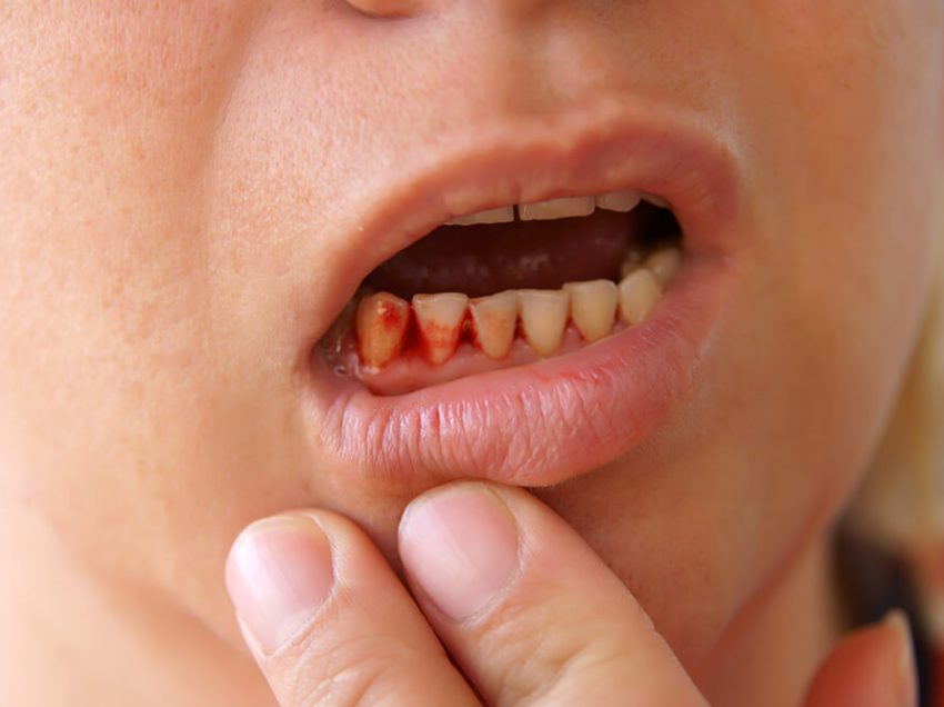 13 причин и лечение кровотечения десен