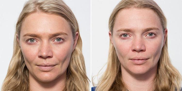 15 явных воздействий на кожу из-за отсутствия сна всю ночь