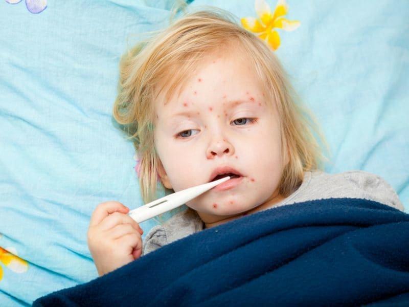 8 наиболее эффективных способов лечения кори у детей