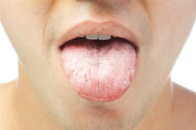 6 эффективных советов для контроля сухости во рту