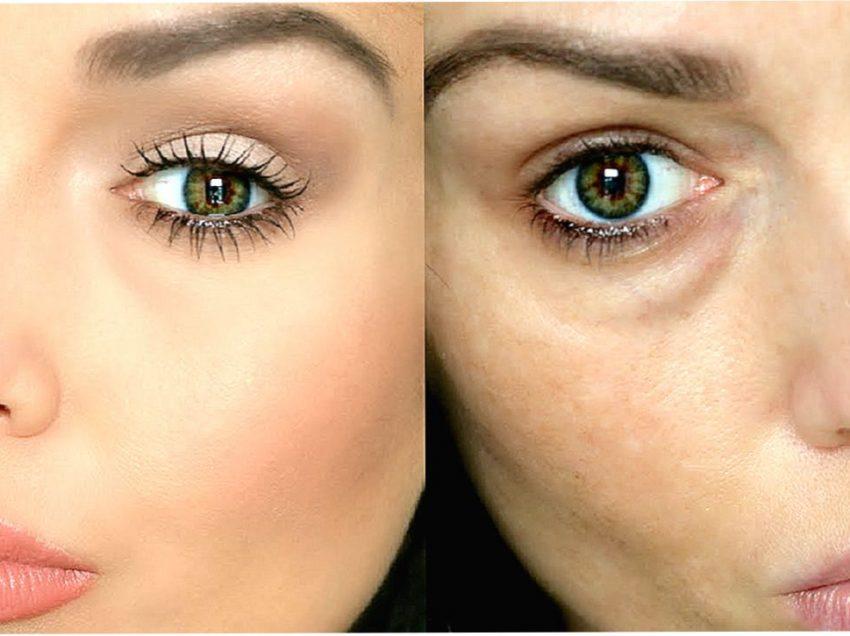 Мешки под глазами: причины, лечение, профилактика