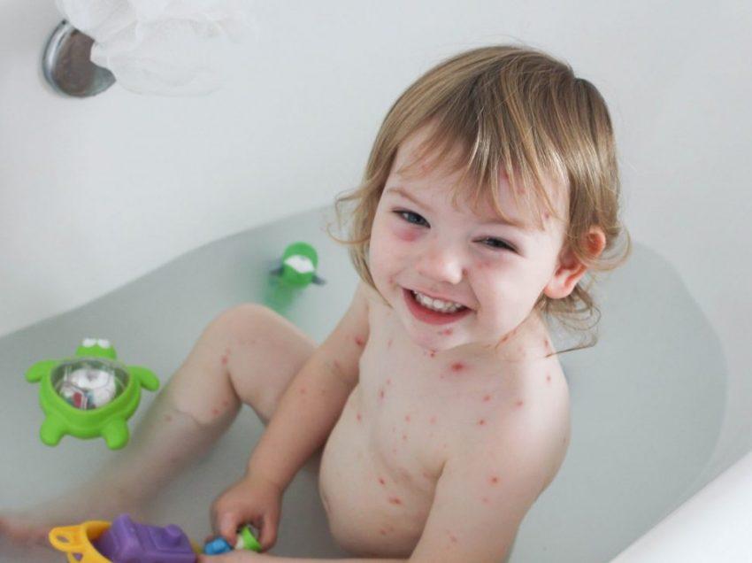 Можно ли принимать ванну во время ветряной оспы? Контролирование зуда народные средства