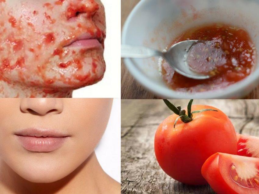 Как предотвратить прыщи с помощью томатной маски