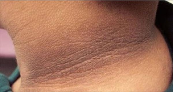 7 домашних средств для обесцвеченной кожи сзади на шее