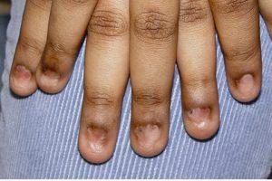 pterygium nail