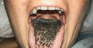 Как лечить черный волосатый язык – причины и симптомы