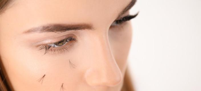 11 причин чрезмерного выпадения ресниц