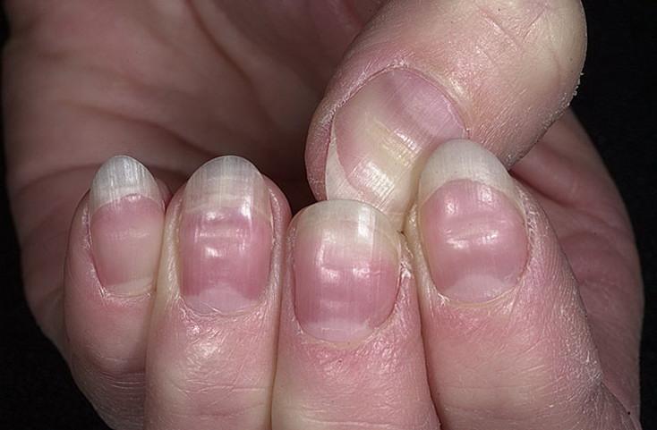 Причины появления волнистых ногтей – лечение и профилактика