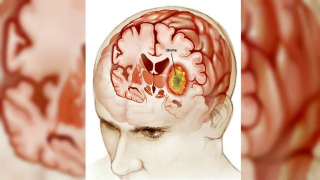 Новообразование головного мозга (симптомы, лечение, профилактика)