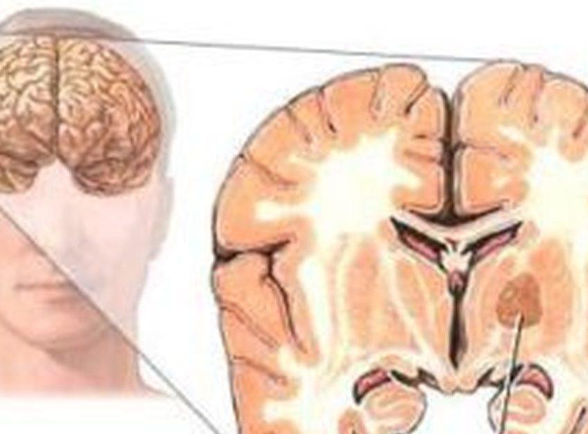 Злокачественное новообразование мозговых оболочек