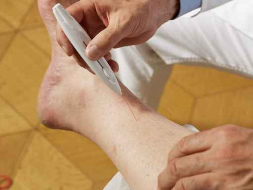 varicose veins and diabetes