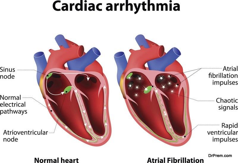 8 типов аритмии сердца, которые необходимо наблюдать