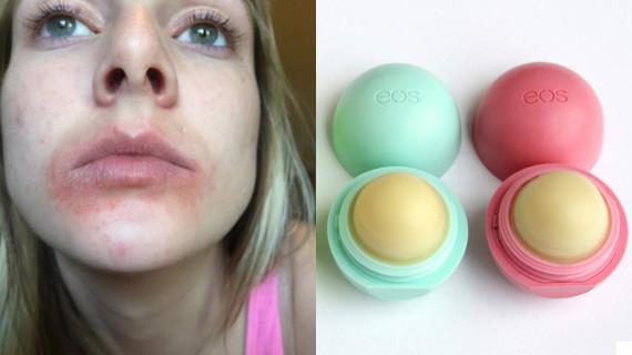 12 побочных эффектов от чрезмерного использования бальзама для губ