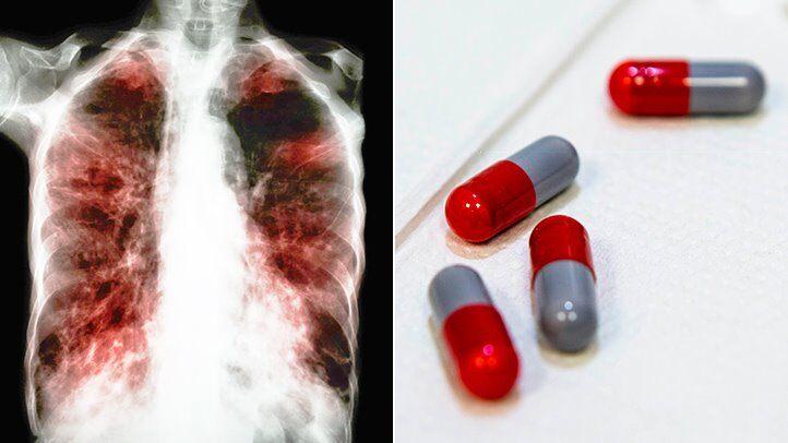 14 способов избавиться от побочных эффектов лечения туберкулеза