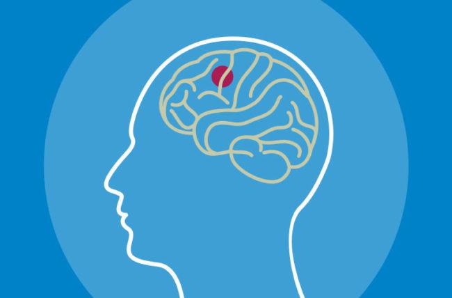Неизвестные признаки и симптомы глиобластомы опухоли головного мозга